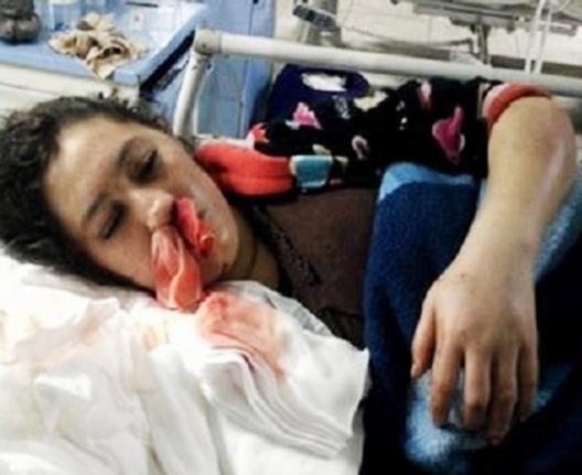 جمعيات حقوقية تطالب بفتح تحقيق في وفاة طفلة مصابة بسرطان الدم بمستشفى الحسيمة