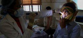 طبيب مغربي: الفطر الأسود مرض نادر جدا غير معد وليس هناك ما يدعو إلى الهلع